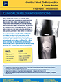 How will you ensure my knee is balanced and confortable? – Dr. Roger Brighton - Hip & Knee Surgeon