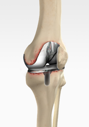 revision-knee-replacement