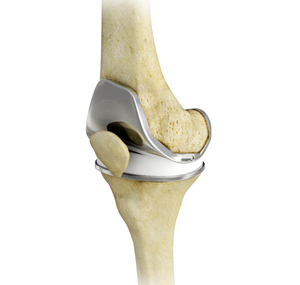 Knee Joint Replacement Sydney Osteoarthritis Diagnosis